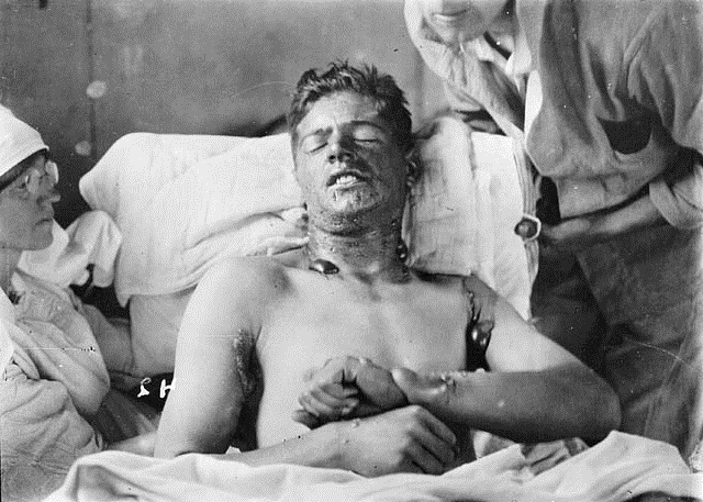 Soldier with mustard gas burns